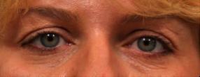 After Restylane Under Eyes