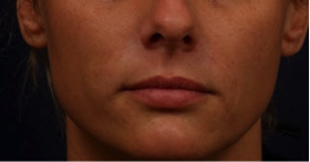 After Restylane Nasal Folds