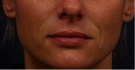 Before Restylane Nasal Folds