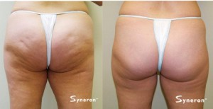 Before and After Velashape III Buttocks (cellulite reduction)