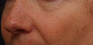 after_rosacea