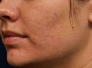 After-smoothbeam-laser-for-acne-2