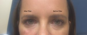Before and After Under eye filler