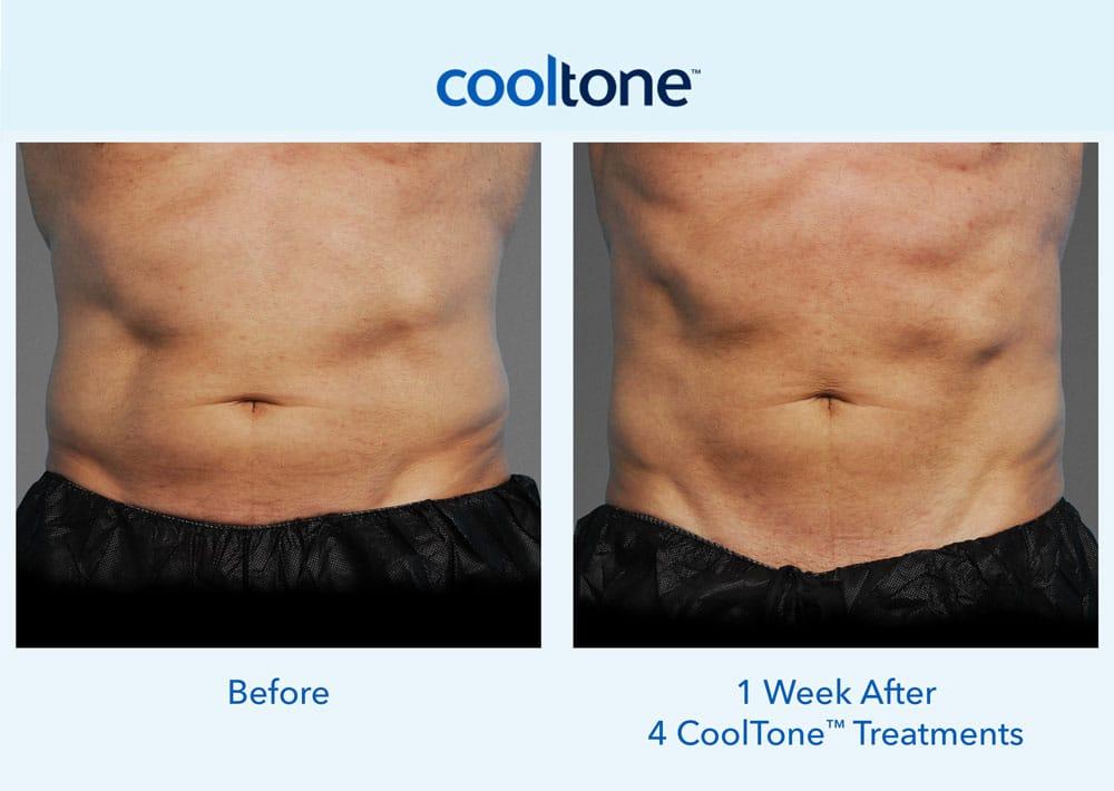 cooltone 1